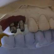 Zahnimplantate 2